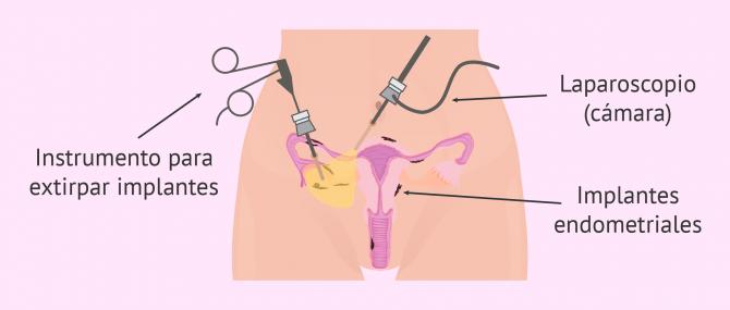 Cirugía para tratar la endometriosis