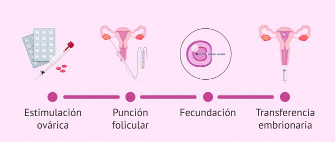Imagen: Proceso de la FIV paso a paso
