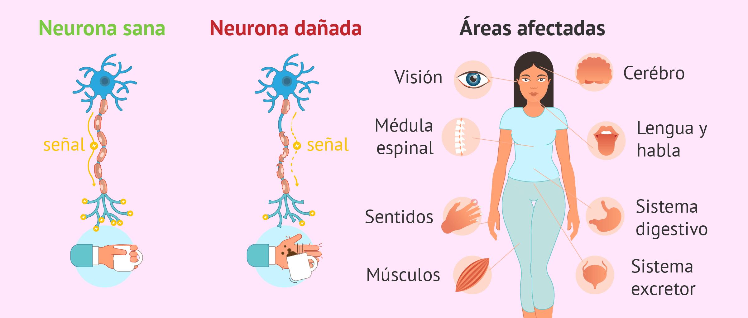 Consecuencias de la esclerosis múltiple