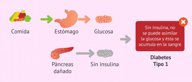 Imagen: Diabetes mellitus tipo 1