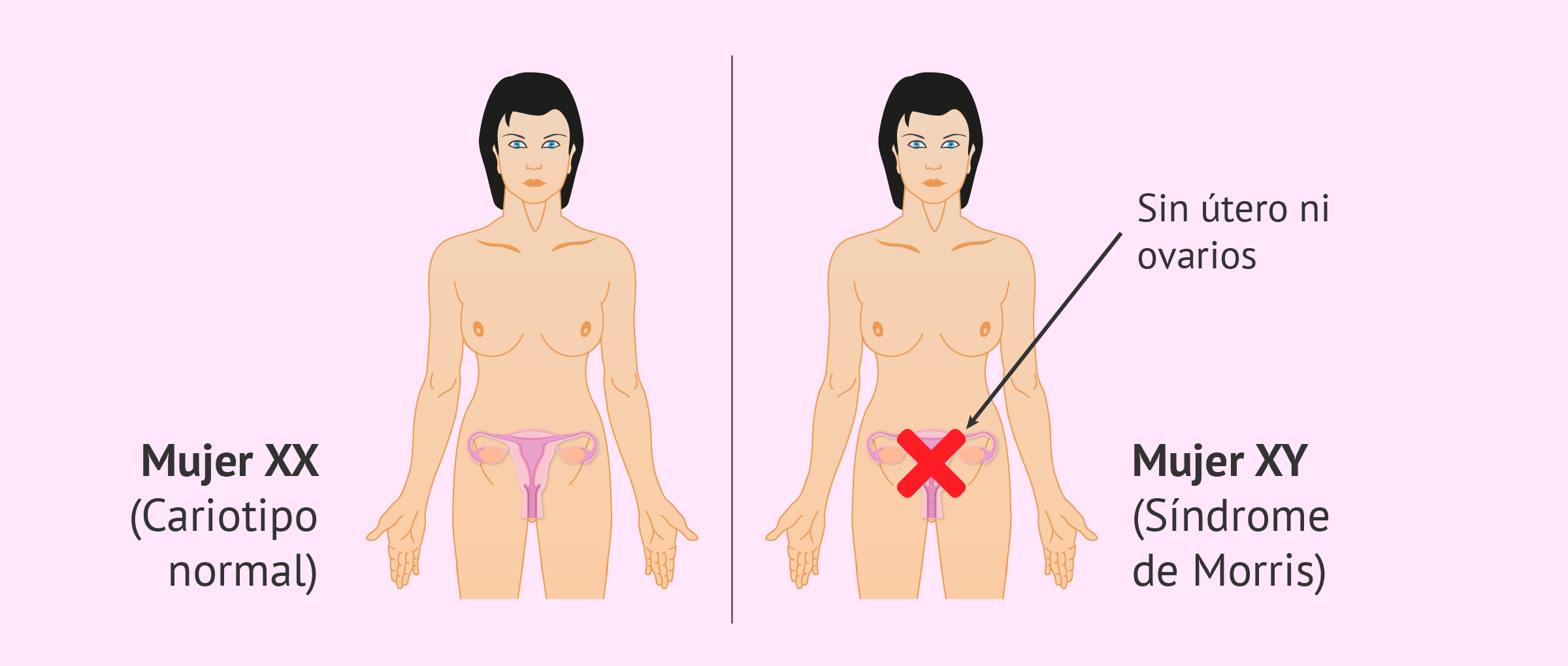 Características de la mujer con síndrome de Morris