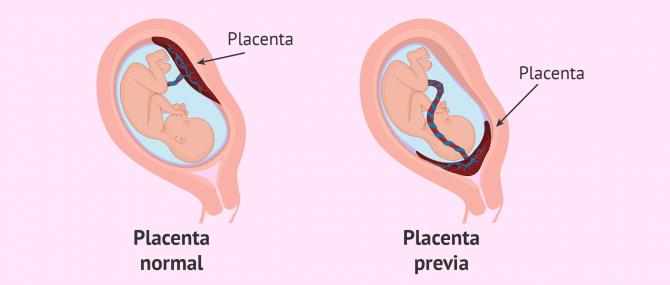 Imagen: Placenta previa en el embarazo gemelar