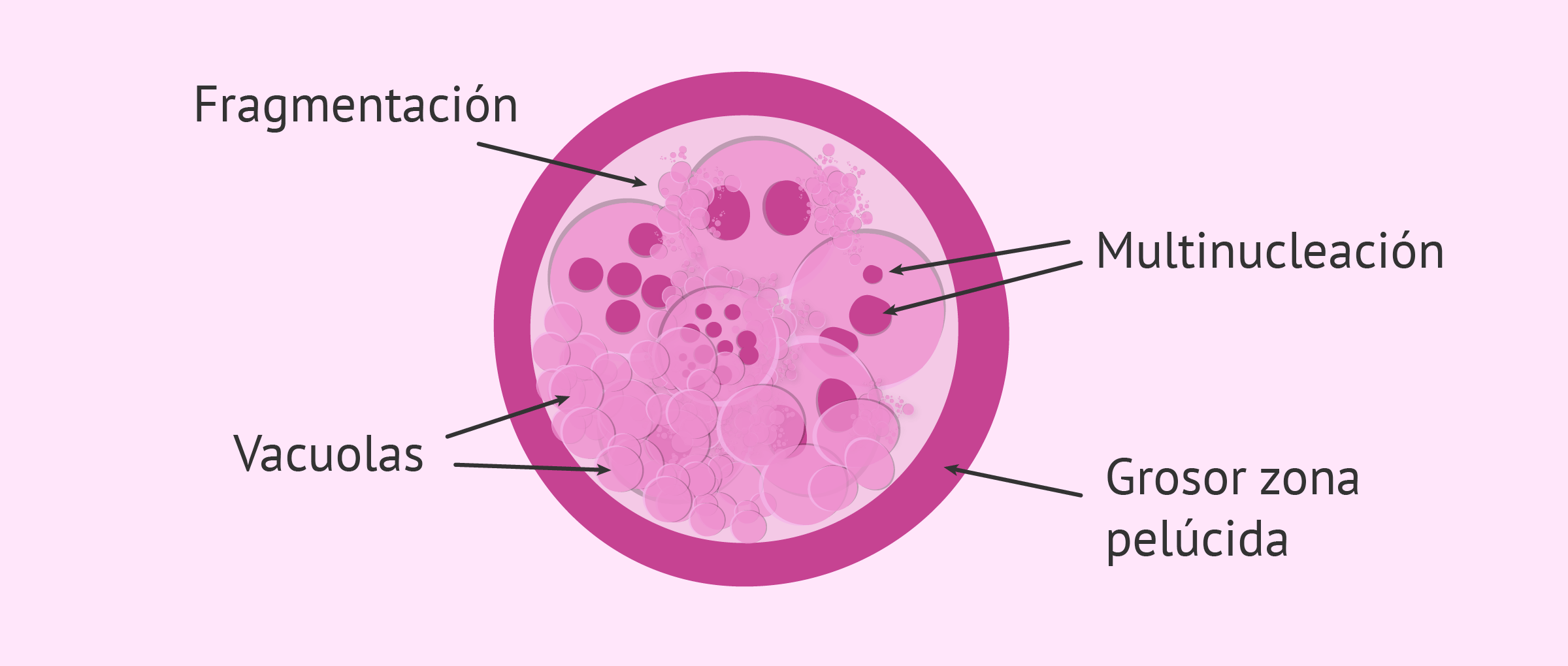 Criterios morfológicos de clasificación embrionaria
