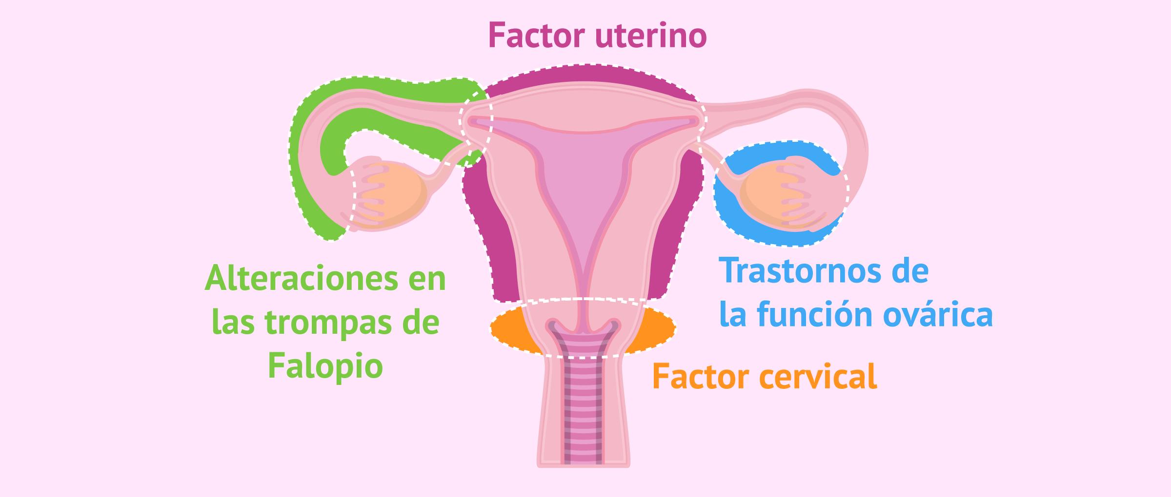 Principales causas de esterilidad femenina