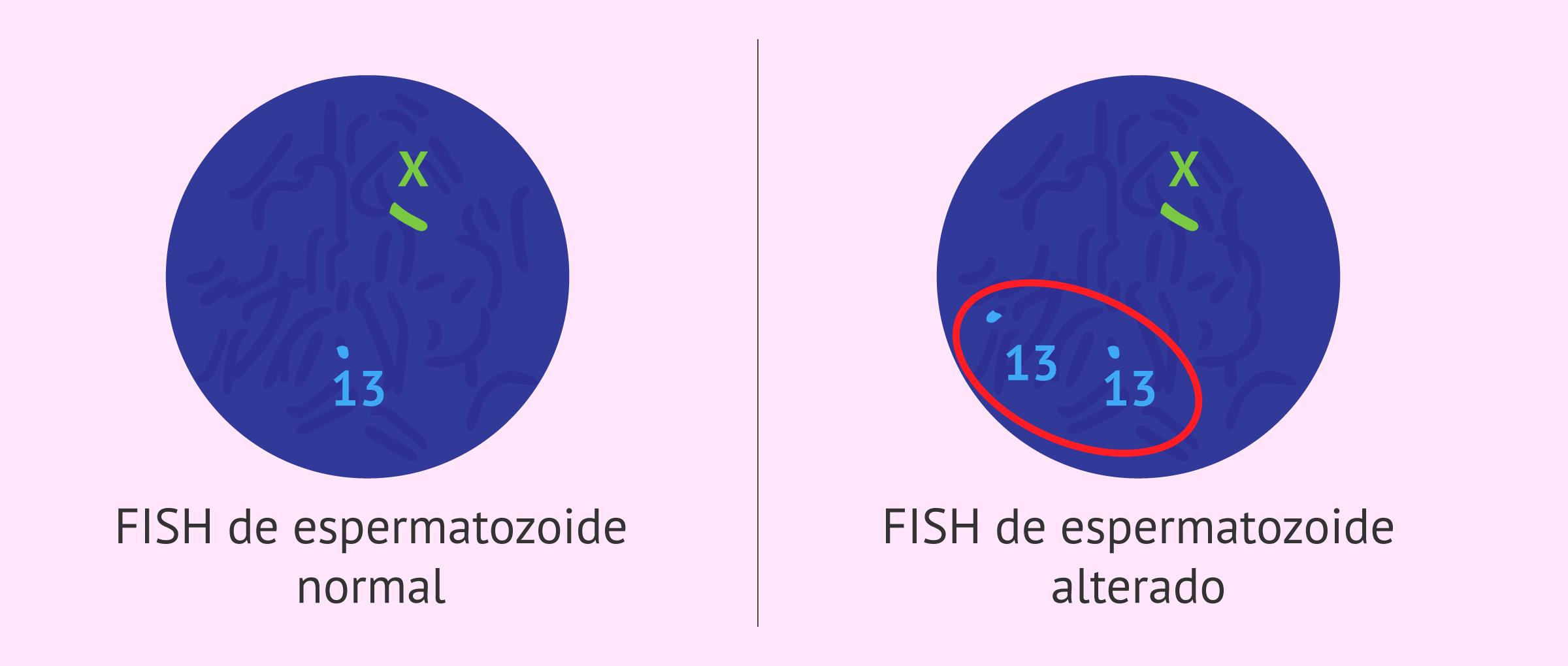 Hibridación in situ o FISH de espermatozoides