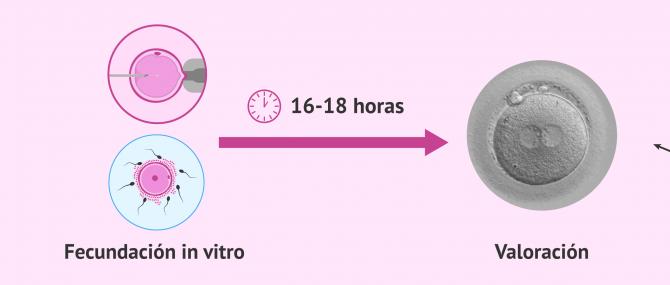 Imagen: Valoración de la fecundación en el laboratorio