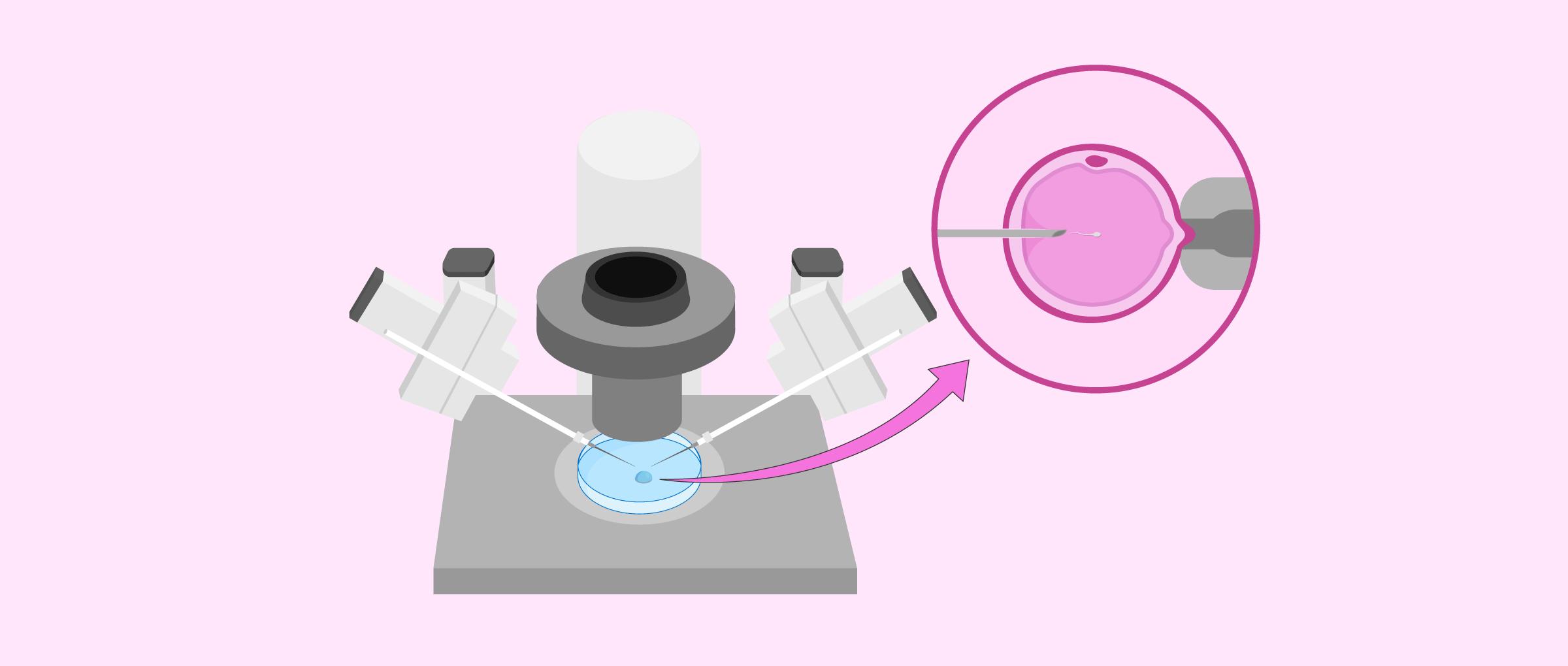 Fecundación mediante la técnica de ICSI