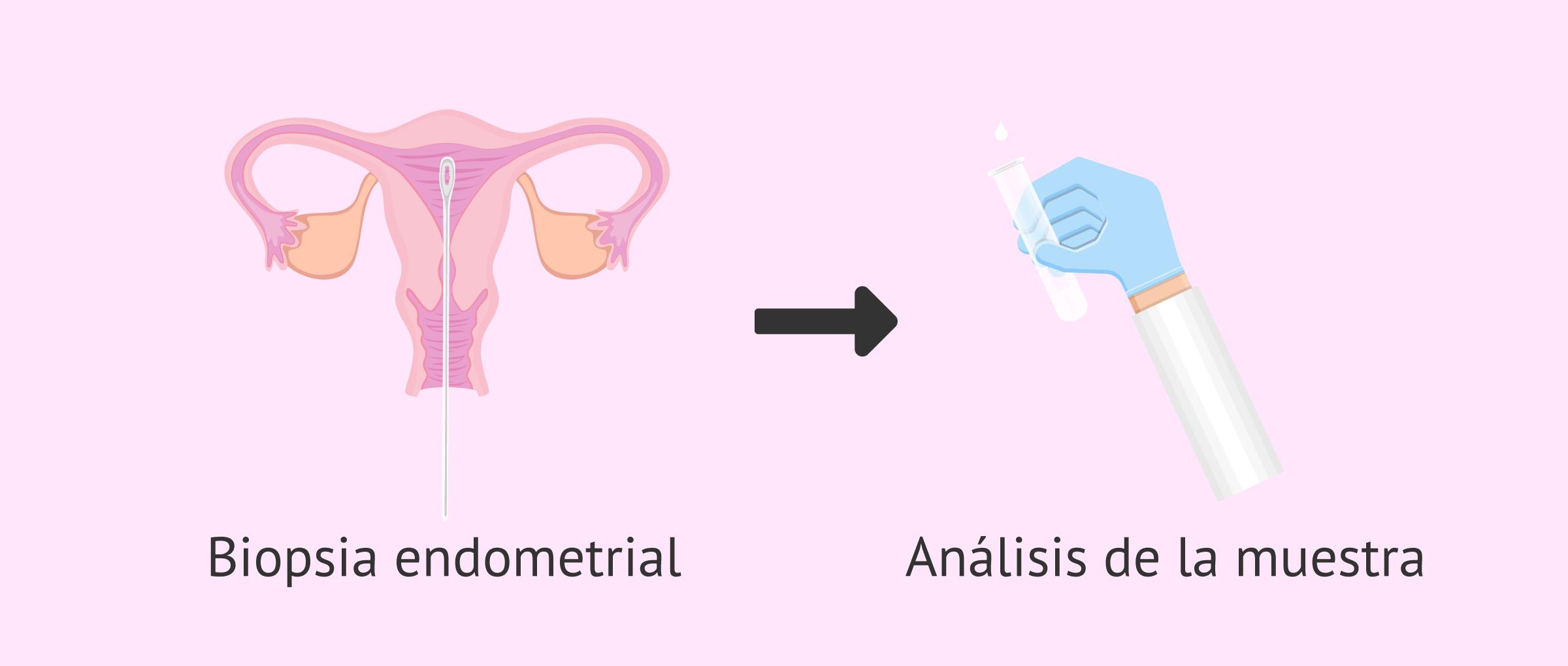 Técnica de la biopsia endometrial