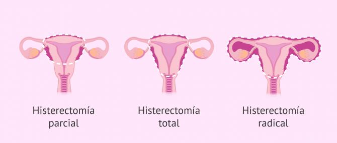Imagen: Tipos de histerectomía