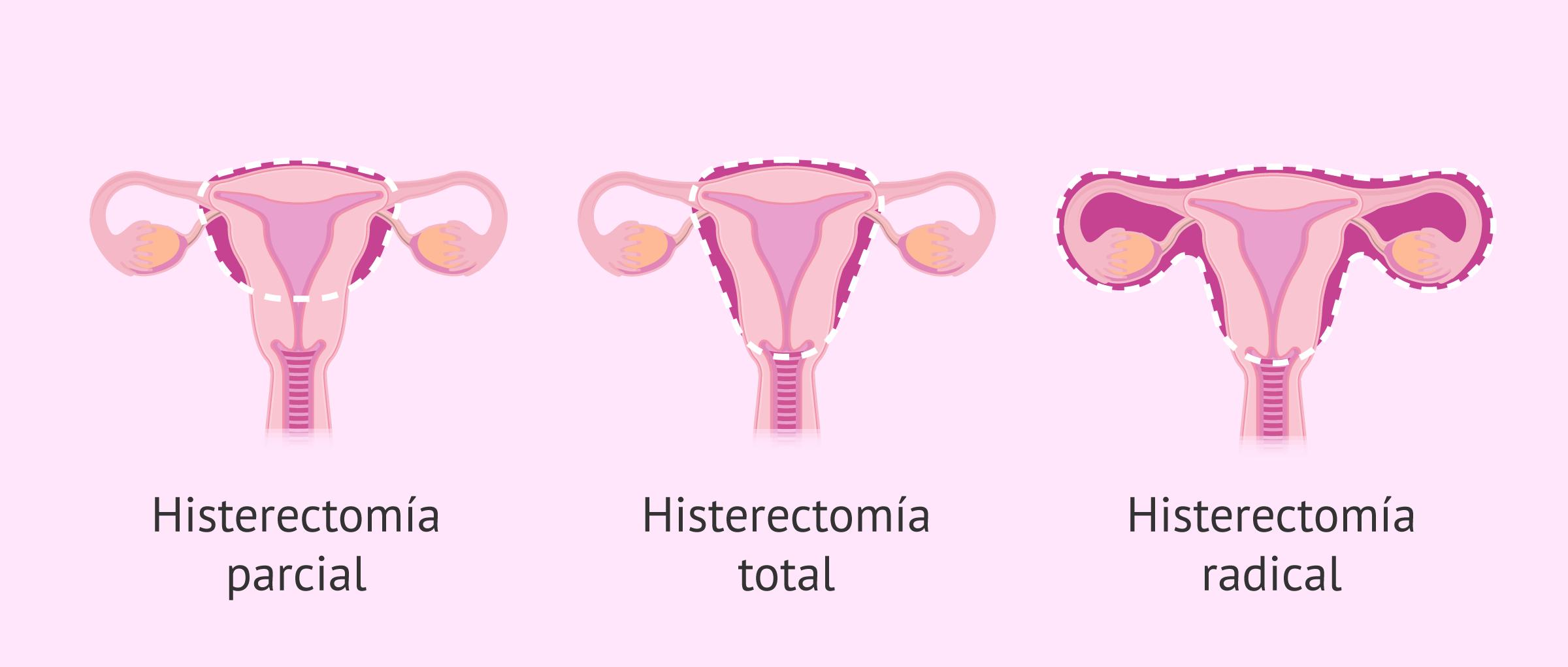 Tipos de histerectomía