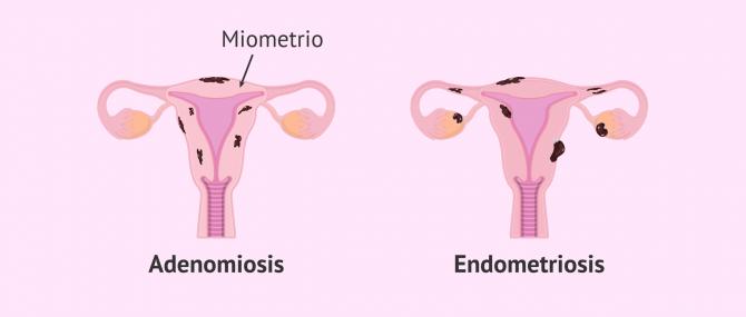 Imagen: Útero con adenomiosis y útero con endometriosis