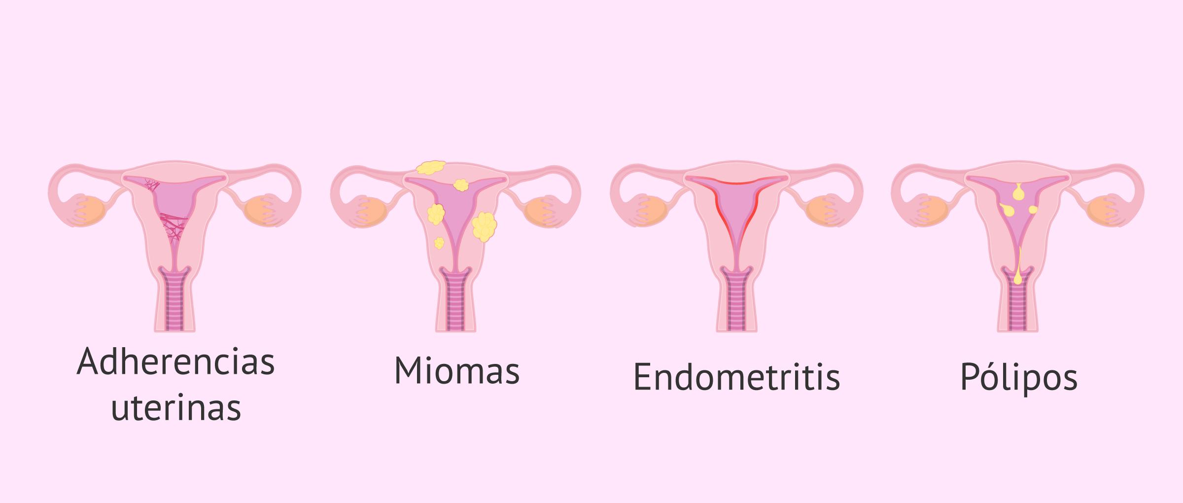 TIpos de tumoraciones y alteraciones endometriales