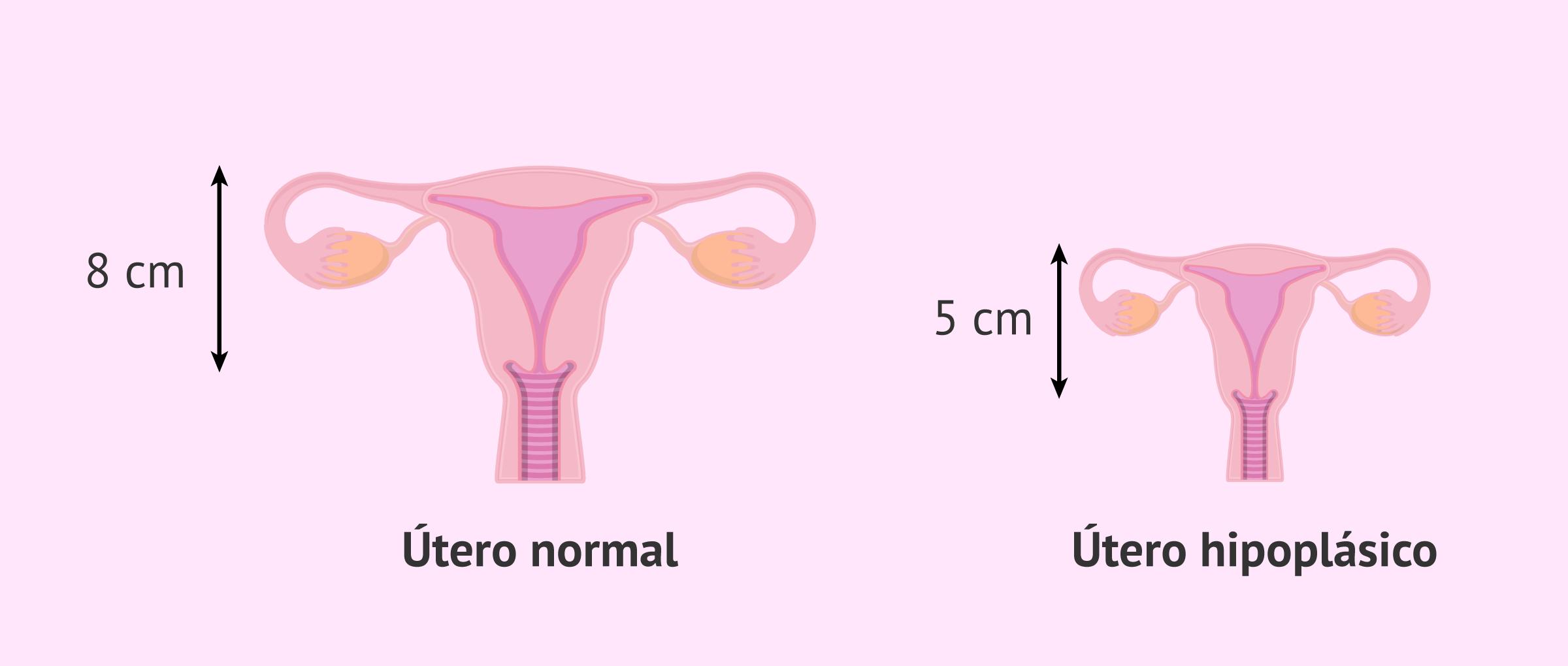 ¿Qué es la hipoplasia uterina?