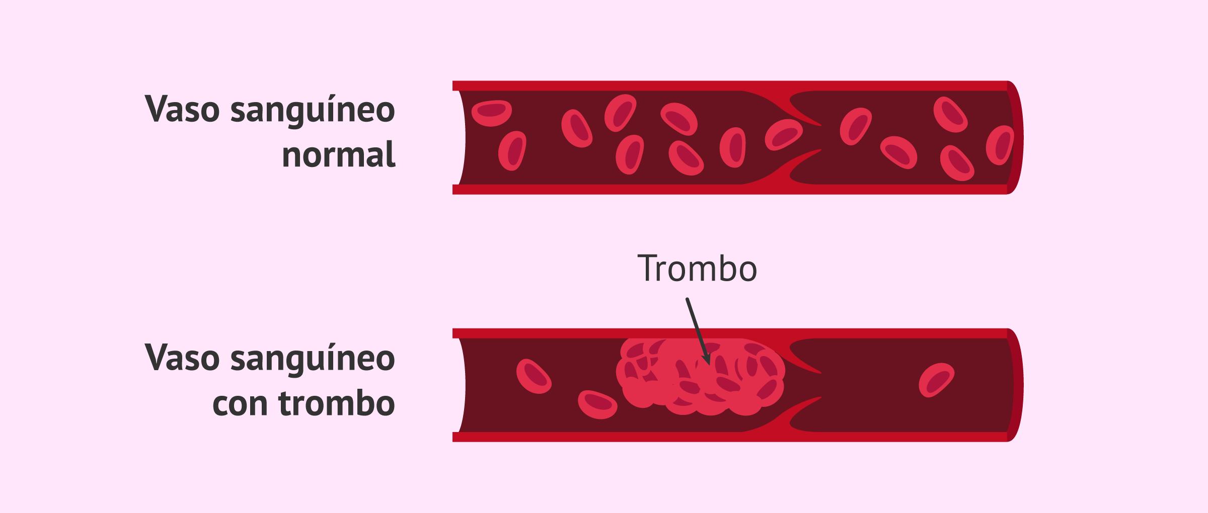 Trombofilia y embarazo