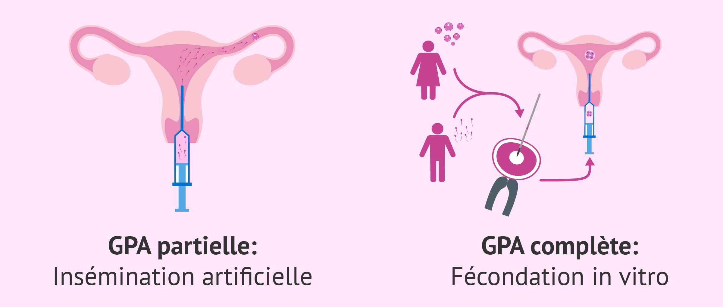 GPA partielle et GPA complète