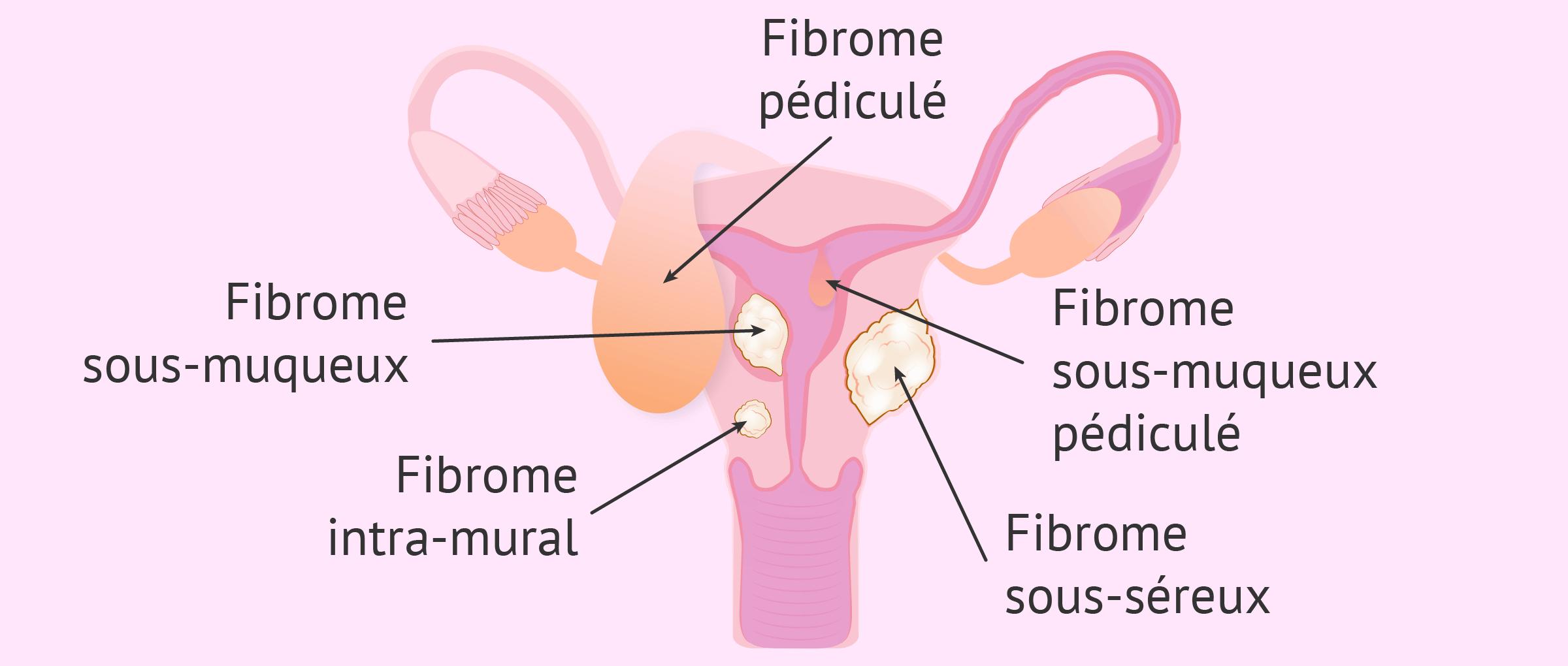 Types de myomatose utérine