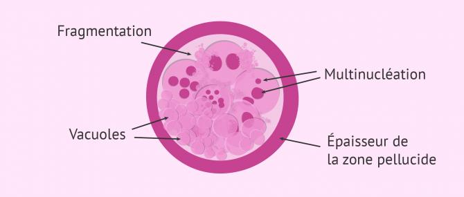 Imagen: critères morphologiques pour classer embryon