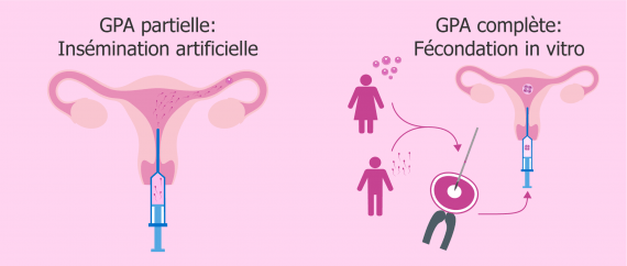 Insémination artificielle et FIV en gestation pour autrui
