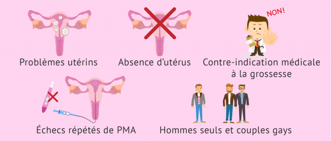 Problèmes de fertilité et recours à la gestation pour autrui