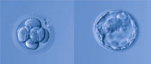 Développement du blastocyste