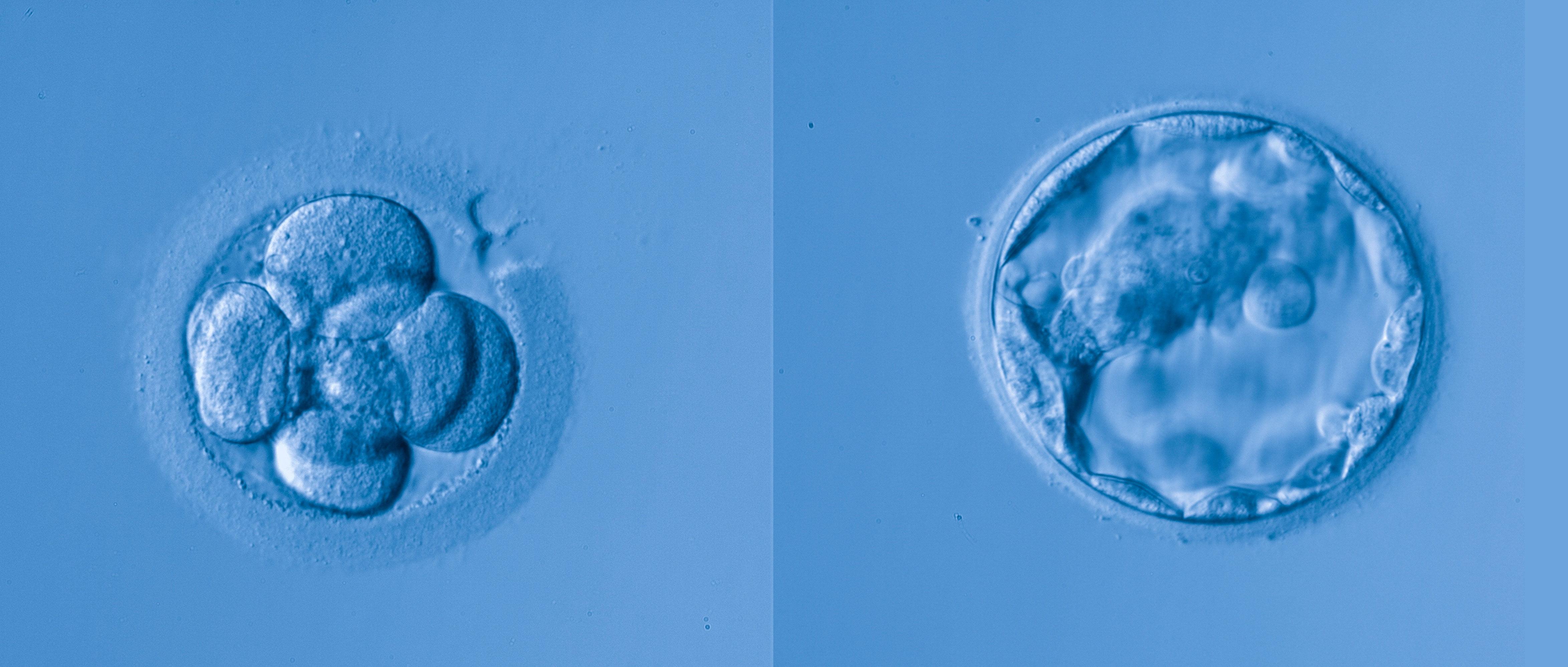Transfert embryonnaire