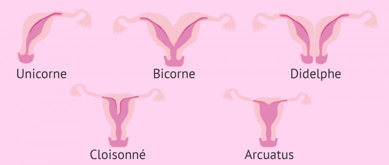 malformations ut rines causes diagnostic et grossesse. Black Bedroom Furniture Sets. Home Design Ideas