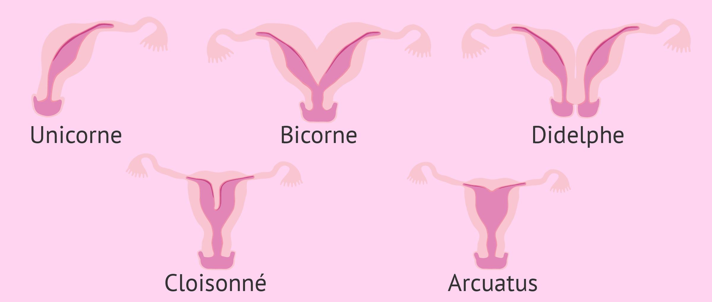 Malformations utérines: causes, diagnostic et grossesse