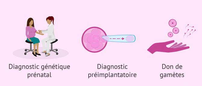 Solutions en cas de fausses-couches pour cause génétique
