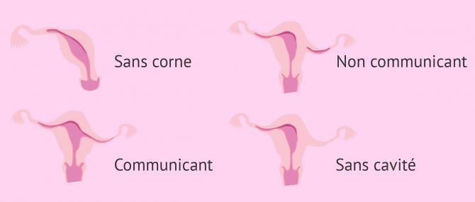 Types d'utérus unicorne