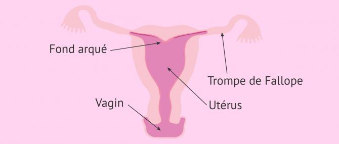 Utérus à fond arqué ou utérus arcuatus