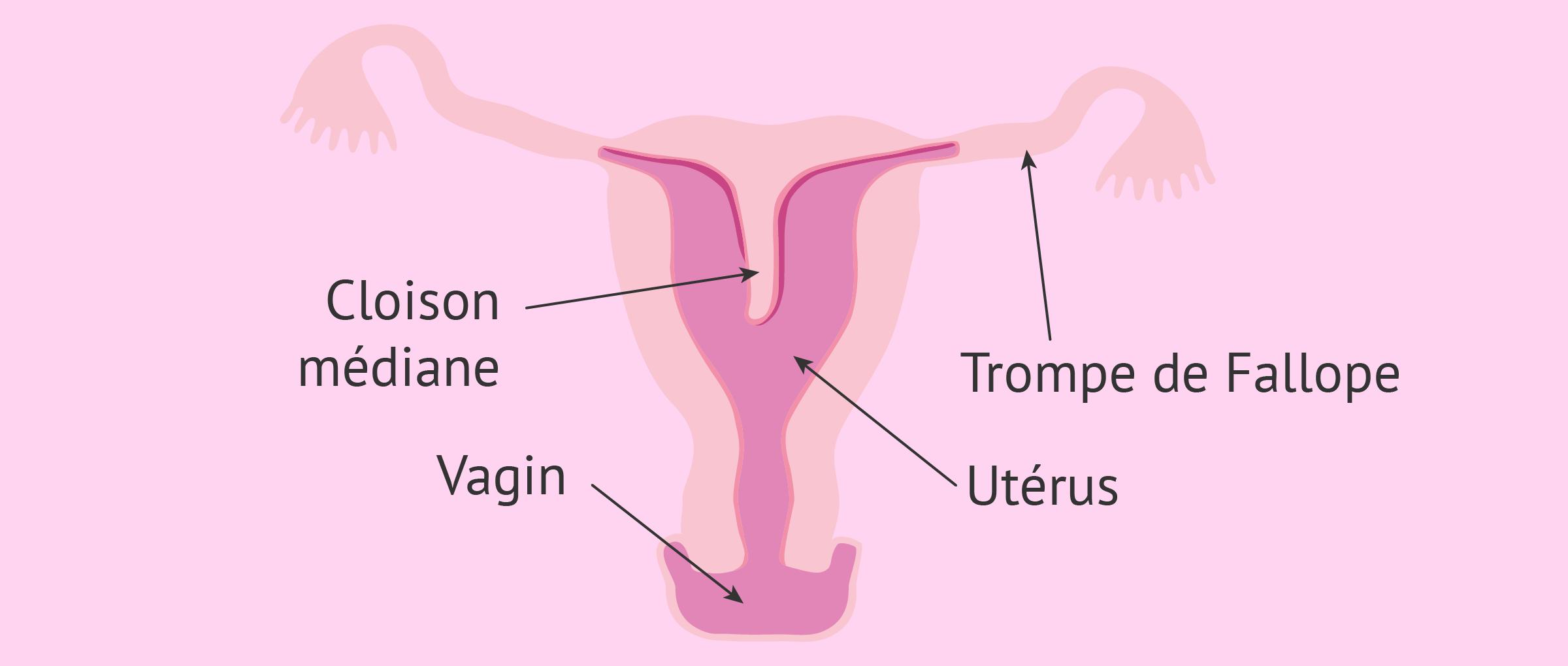 Utérus cloisonné
