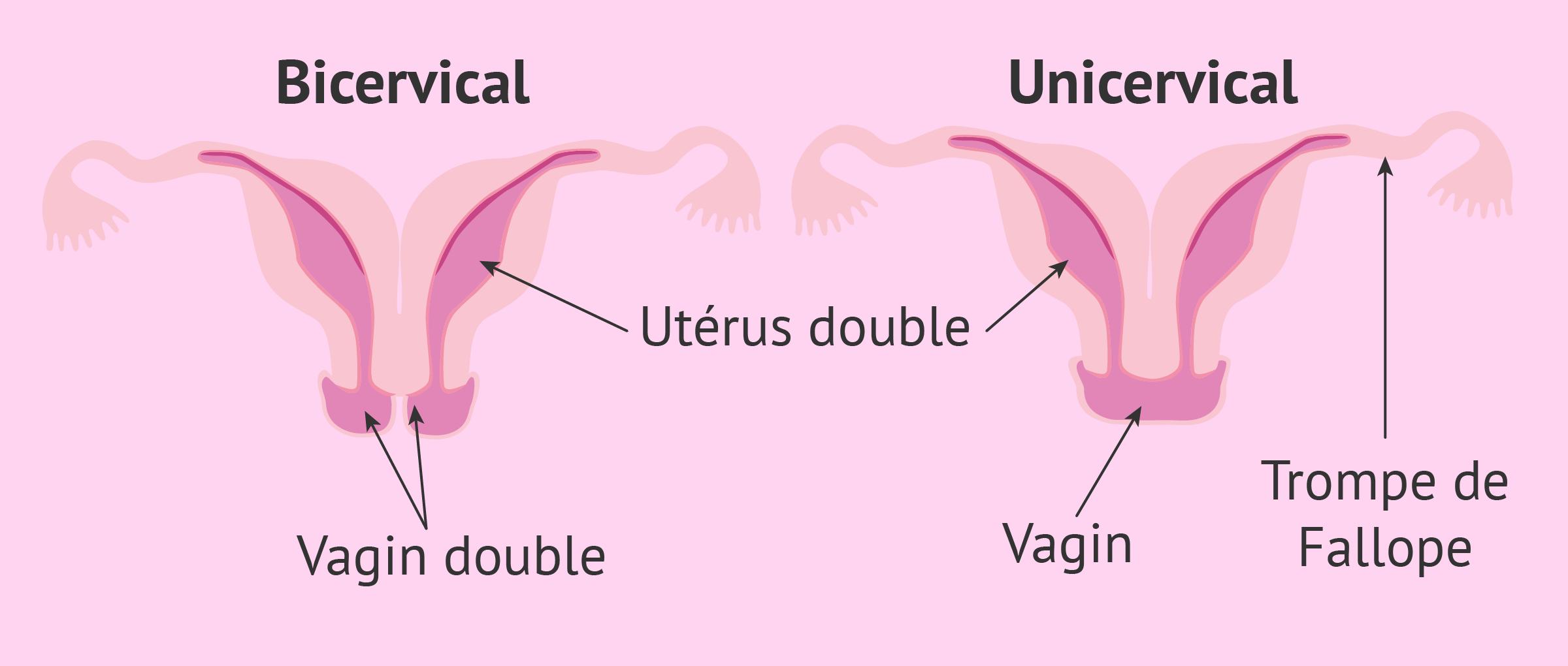 Utérus didelphe