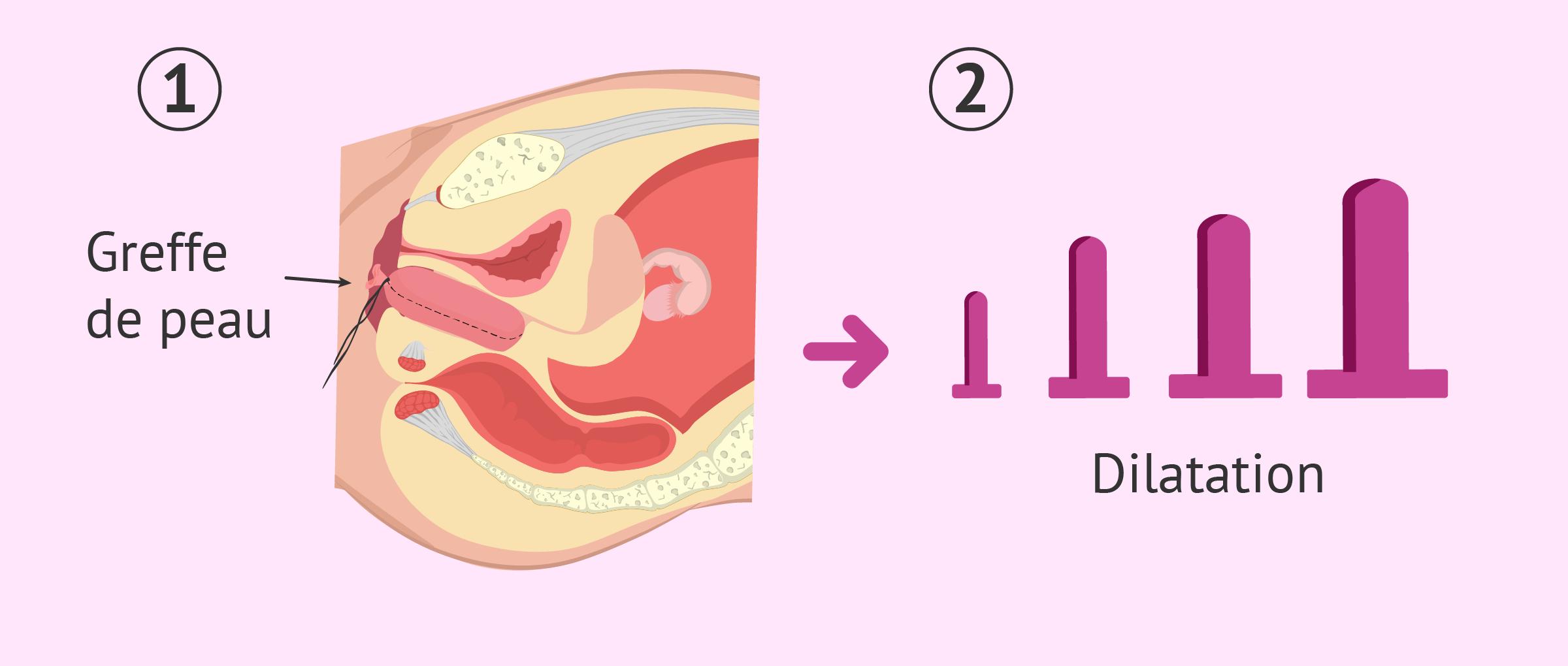 Intervention chirurgicale pour la construction d'un vagin