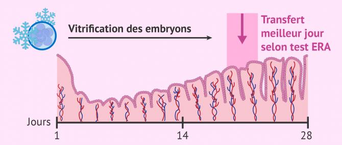 Transfert embryonnaire après un test ERA