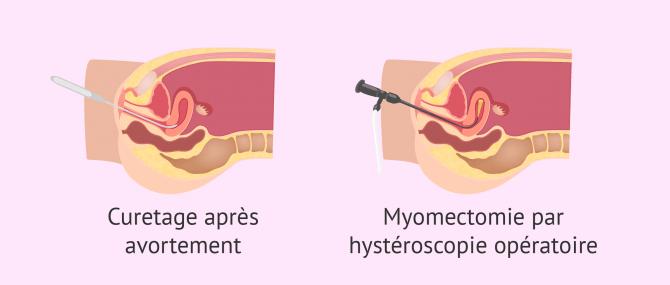 Causes possibles des synéchies utérines