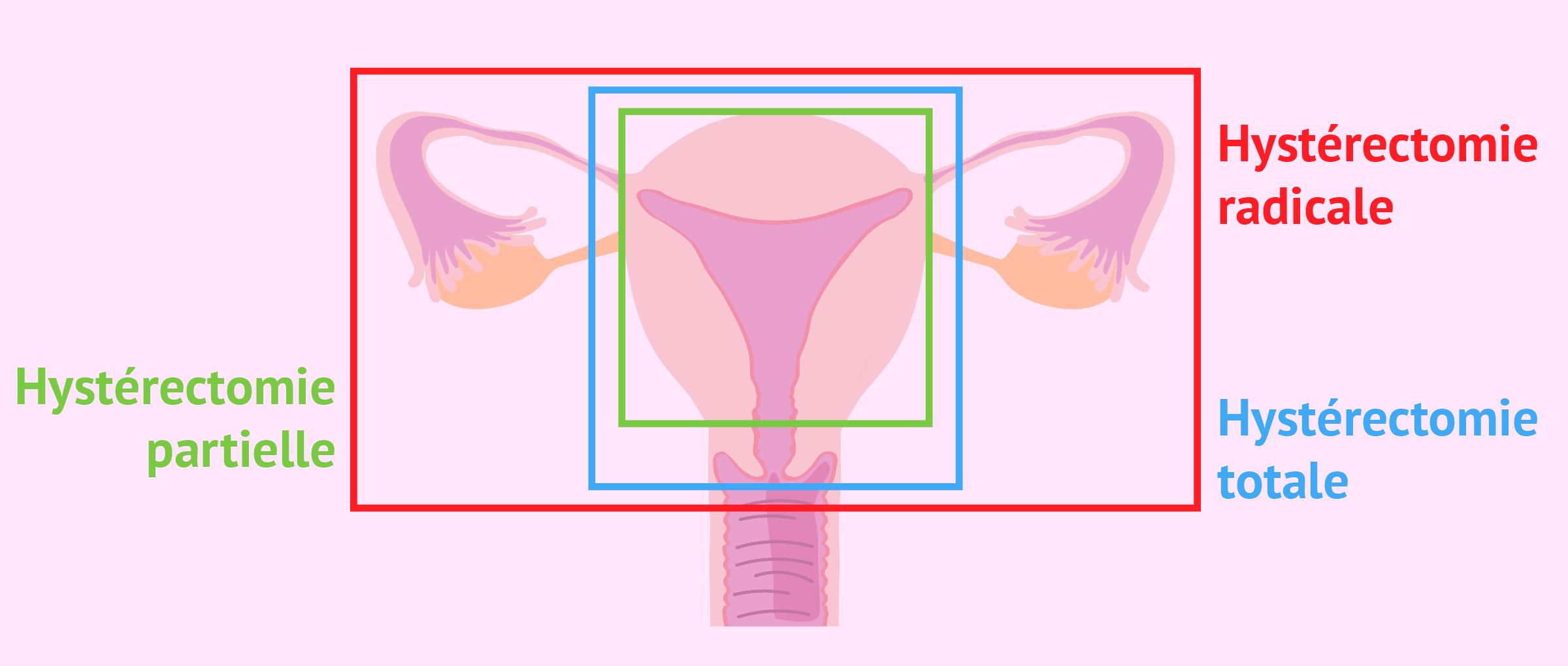 Types d'hystérectomie