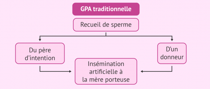 Combinaisons possibles en GPA traditionnelle