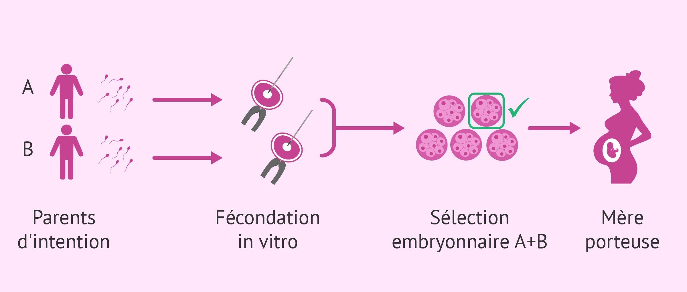 Transfert d'embryons d'un couple gay
