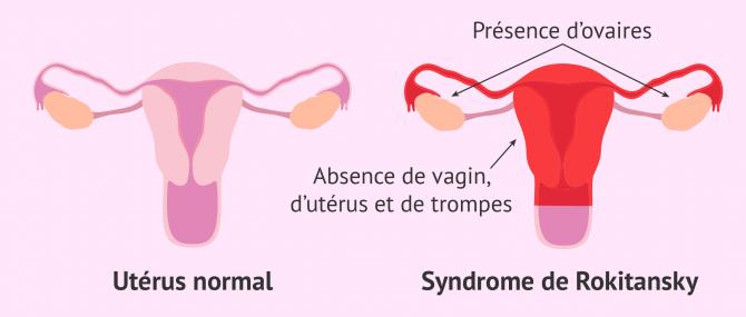 Syndrome MRKH: absence de vagin, d'utérus et de trompes