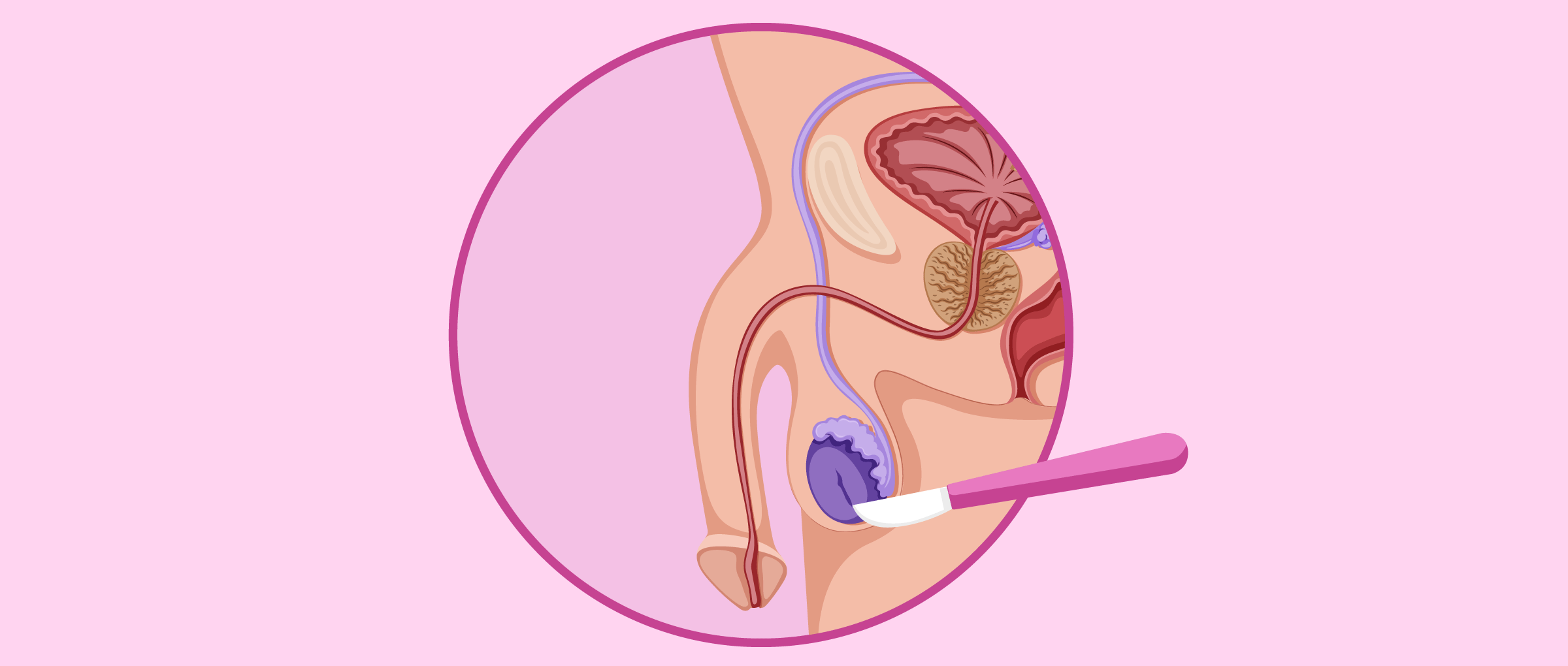 La biopsie testiculaire pour vérifier la production de spermatozoïdes