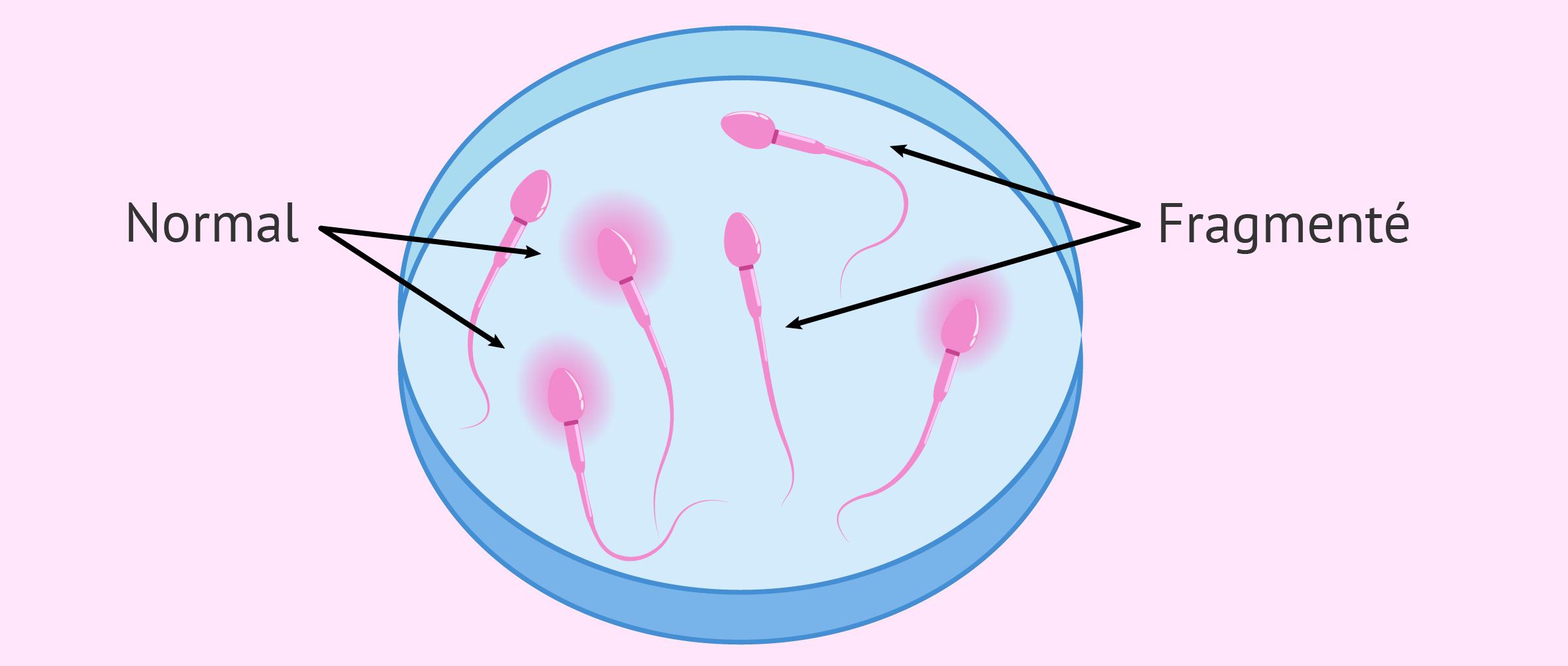 Imagen: Fragmentation ADN Sperme