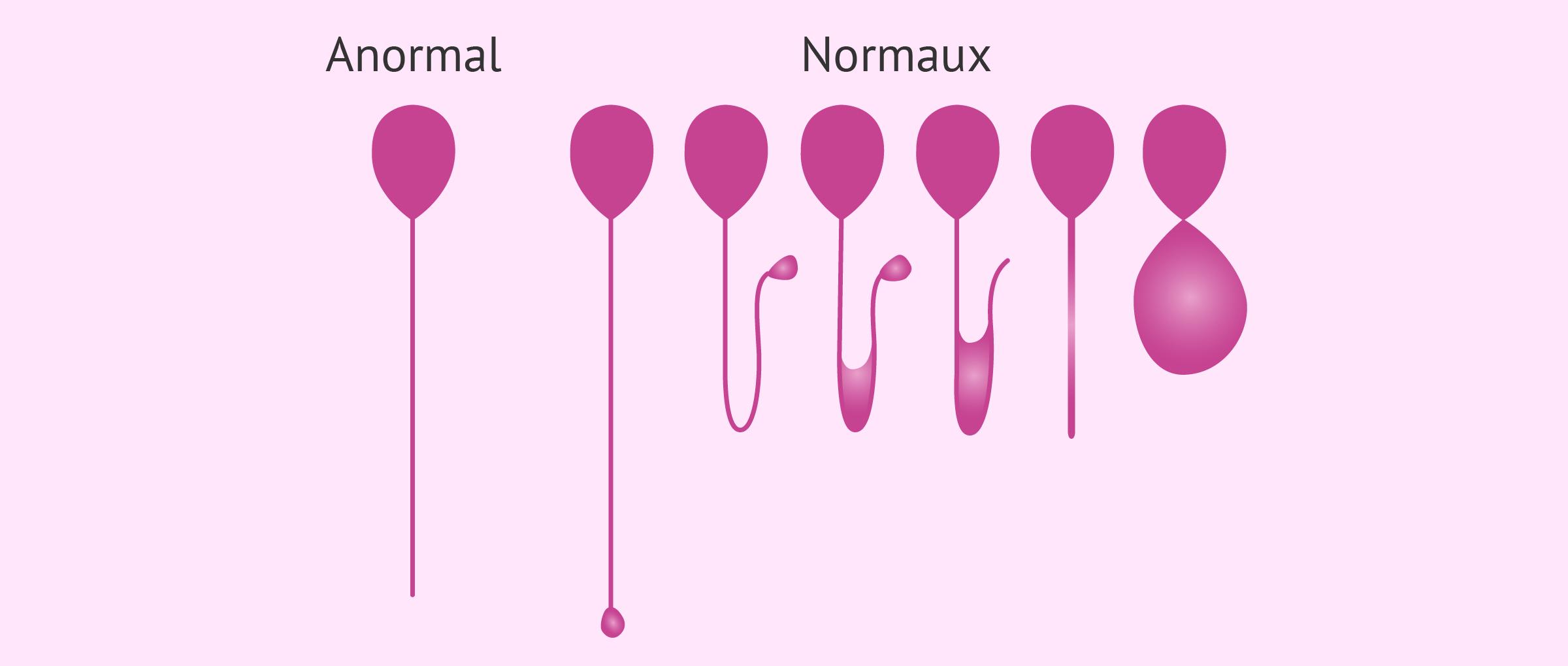 Test hyposmotique pour mesurer l'intégrité de la membrane spermatique