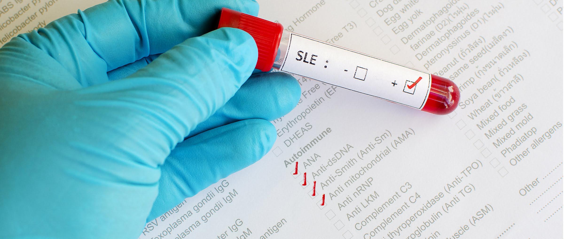 Détection d'auto-anticorps et de marqueurs inflammatoires