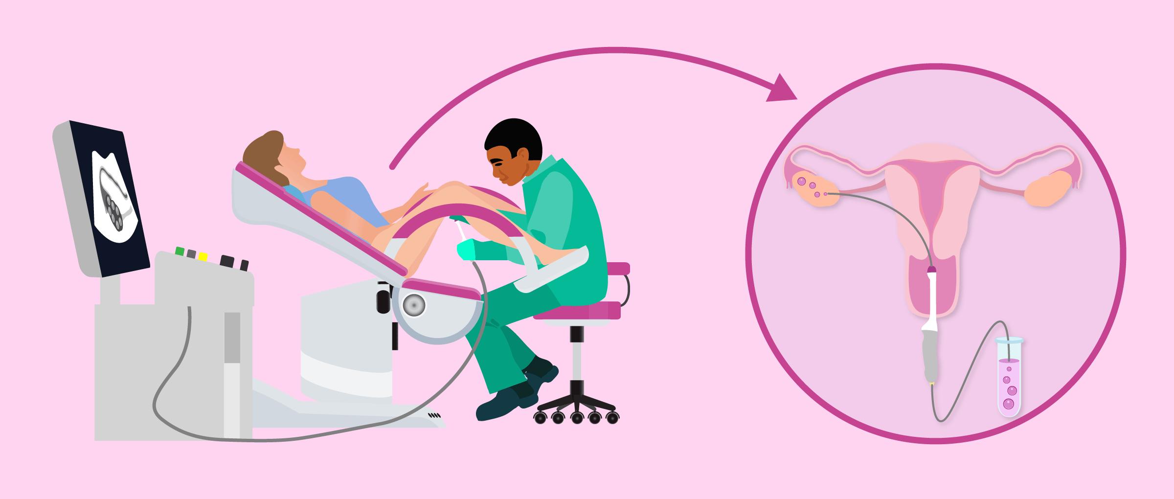 Comment se déroule la ponction ovarienne pour extraire les ovules?