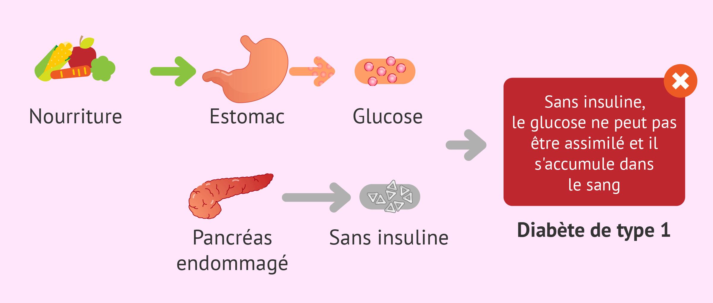 Diabète sucré de type 1