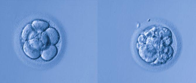 Imagen: Différentes qualités d'embryons