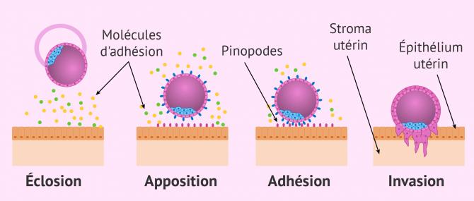 Imagen: Phases implantation