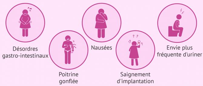 Imagen: Symptômes implantation