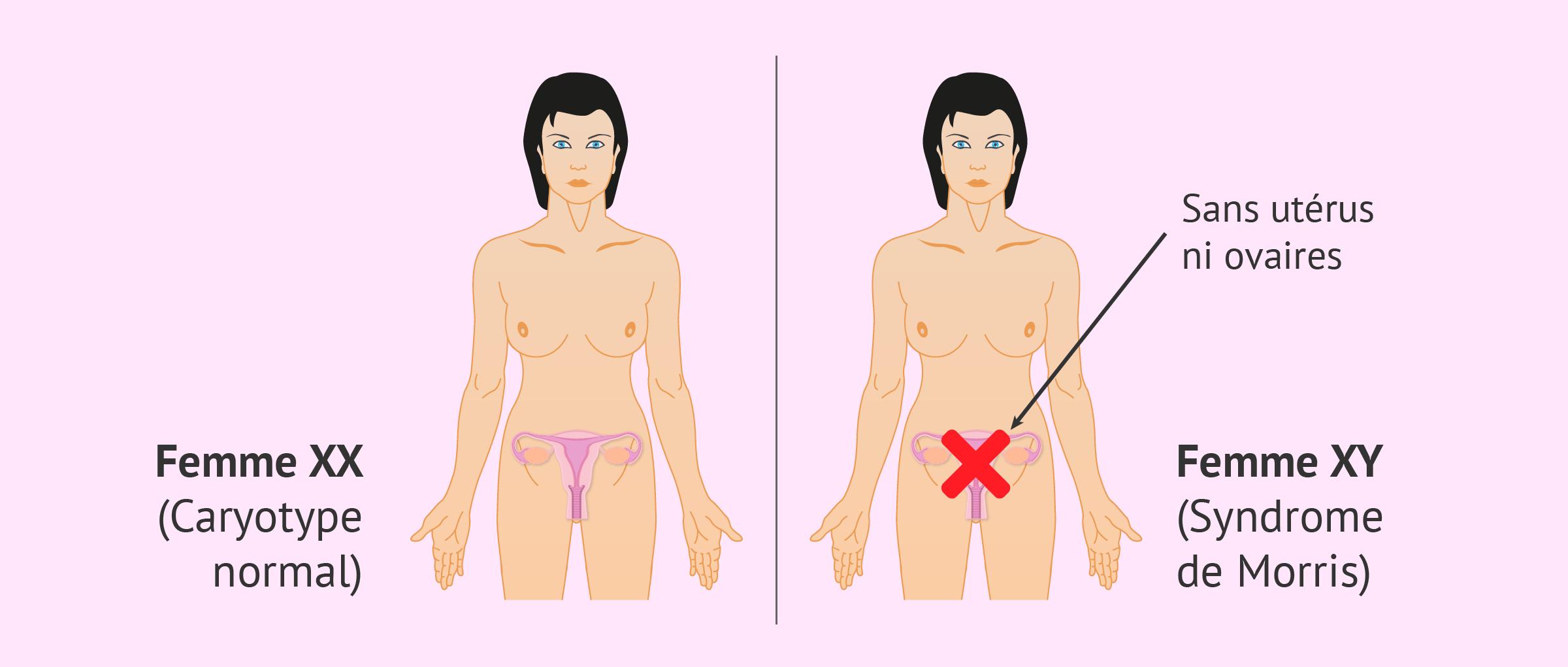 Caractéristiques de la femme atteinte du syndrome de Morris