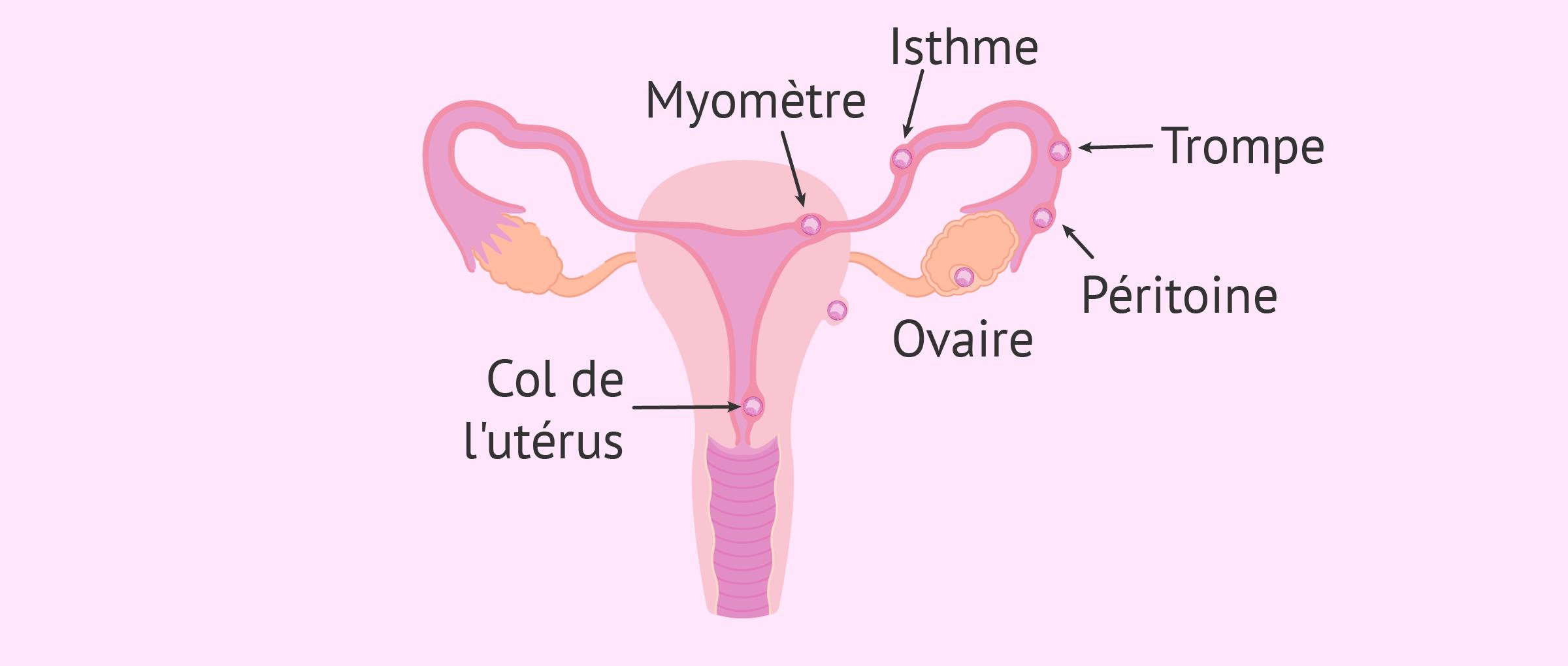 Lieux d'implantation d'embryons dans une grossesse extra-utérine